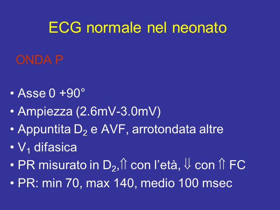 ONDA P Asse 0 +90° Ampiezza (2.6mV-3.0mV) Appuntita D 2 e AVF, arrotondata altre V 1 difasica PR misurato in D 2, con letà, con FC PR: min 70, max 140