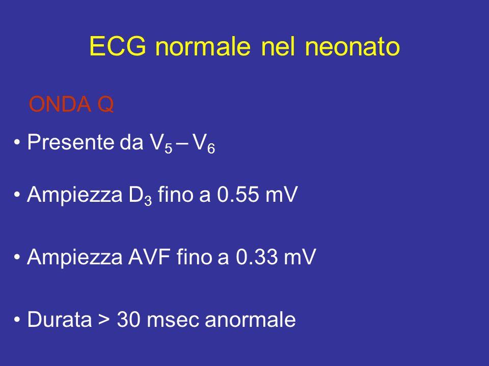 ONDA Q Presente da V 5 – V 6 Ampiezza D 3 fino a 0.55 mV Ampiezza AVF fino a 0.33 mV Durata > 30 msec anormale ECG normale nel neonato