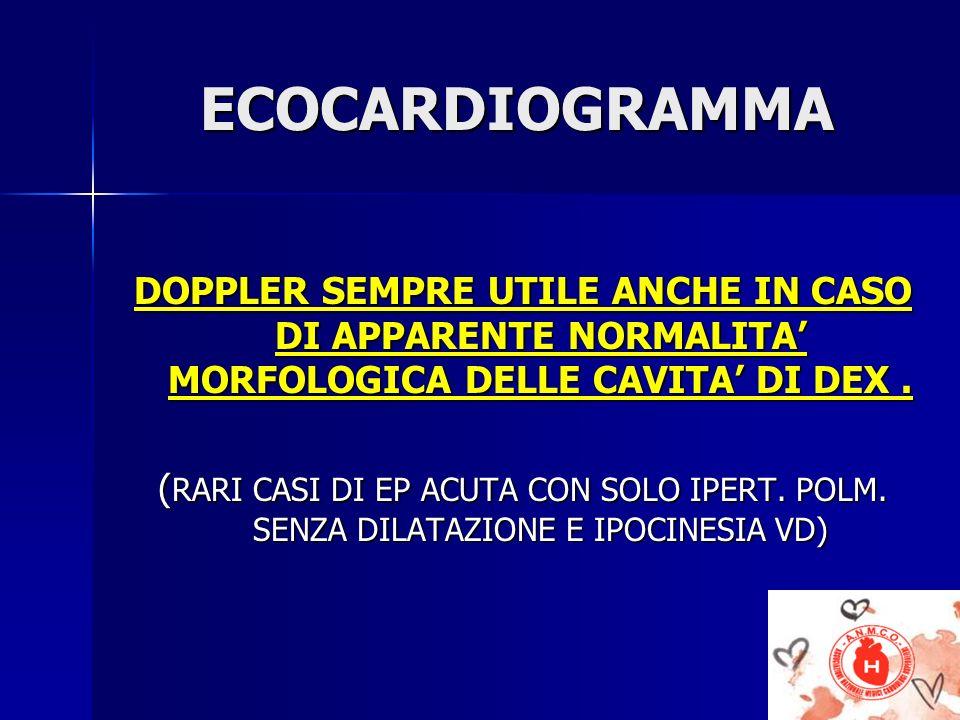 ECOCARDIOGRAMMA ECOCARDIOGRAMMA DOPPLER SEMPRE UTILE ANCHE IN CASO DI APPARENTE NORMALITA MORFOLOGICA DELLE CAVITA DI DEX. ( RARI CASI DI EP ACUTA CON