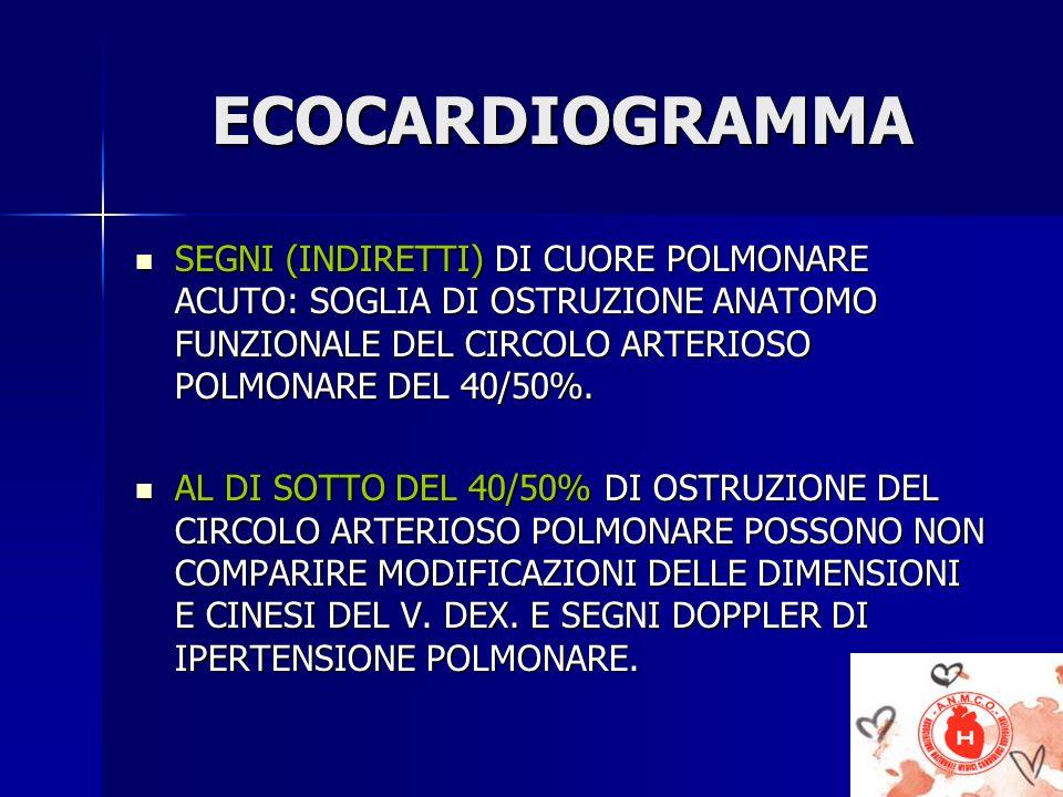 ECOCARDIOGRAMMA SEGNI (INDIRETTI) DI CUORE POLMONARE ACUTO: SOGLIA DI OSTRUZIONE ANATOMO FUNZIONALE DEL CIRCOLO ARTERIOSO POLMONARE DEL 40/50%. SEGNI
