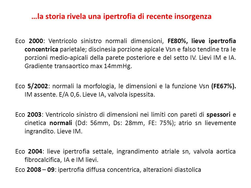 Eco 2000: Ventricolo sinistro normali dimensioni, FE80%, lieve ipertrofia concentrica parietale; discinesia porzione apicale Vsn e falso tendine tra l