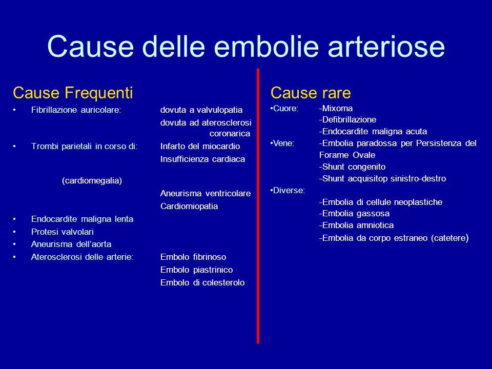 Cause delle embolie arteriose Cause Frequenti Fibrillazione auricolare: dovuta a valvulopatia dovuta ad aterosclerosi coronarica Trombi parietali in corso di: Infarto del miocardio Insufficienza cardiaca (cardiomegalia) Aneurisma ventricolare Cardiomiopatia Endocardite maligna lenta Protesi valvolari Aneurisma dellaorta Aterosclerosi delle arterie: Embolo fibrinoso Embolo piastrinico Embolo di colesterolo Cause rare Cuore: -Mixoma -Defibrillazione -Endocardite maligna acuta Vene: -Embolia paradossa per Persistenza del Forame Ovale -Shunt congenito -Shunt acquisitop sinistro-destro Diverse: -Embolia di cellule neoplastiche -Embolia gassosa -Embolia amniotica -Embolia da corpo estraneo (catetere )