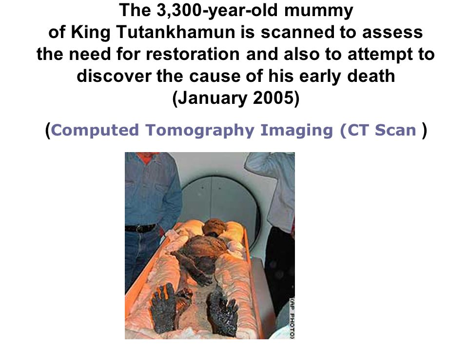 The 3,300-year-old mummy of King Tutankhamun is scanned to assess the need for restoration and also to attempt to discover the cause of his early deat