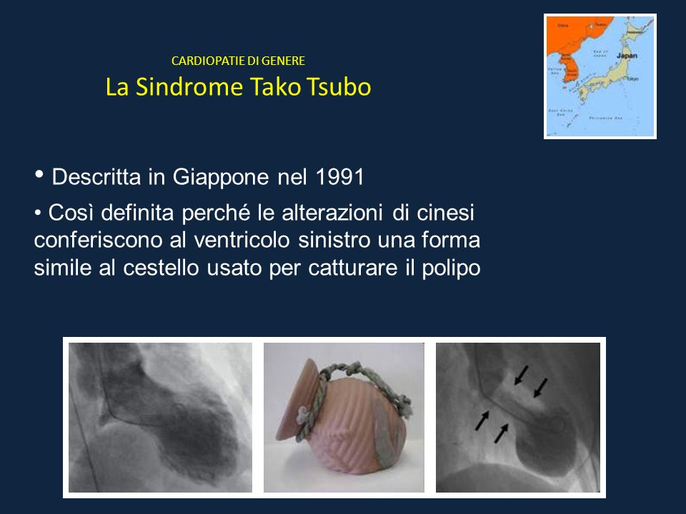 CARDIOPATIE DI GENERE La Sindrome Tako Tsubo Descritta in Giappone nel 1991 Così definita perché le alterazioni di cinesi conferiscono al ventricolo s