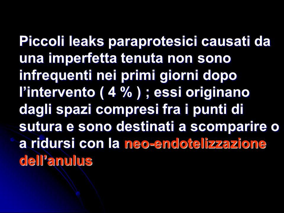Piccoli leaks paraprotesici causati da una imperfetta tenuta non sono infrequenti nei primi giorni dopo lintervento ( 4 % ) ; essi originano dagli spa