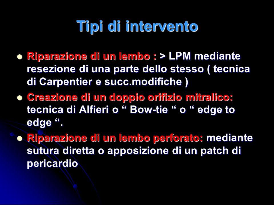 Tipi di intervento Interventi sulle corde tendinee: resezione parziale, accorciamento, trasposizione, eteroimpianto di corde di tessuto artificiale ( goretex ) Interventi sulle corde tendinee: resezione parziale, accorciamento, trasposizione, eteroimpianto di corde di tessuto artificiale ( goretex ) Interventi riduttivi sullanello mitralico: anuloplastica o di inserimento di anello protesico Interventi riduttivi sullanello mitralico: anuloplastica o di inserimento di anello protesico