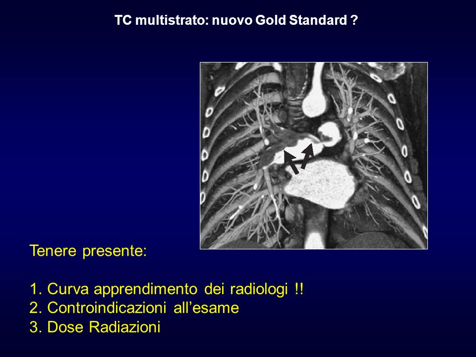 Tenere presente: 1.Curva apprendimento dei radiologi !! 2.Controindicazioni allesame 3.Dose Radiazioni TC multistrato: nuovo Gold Standard ?