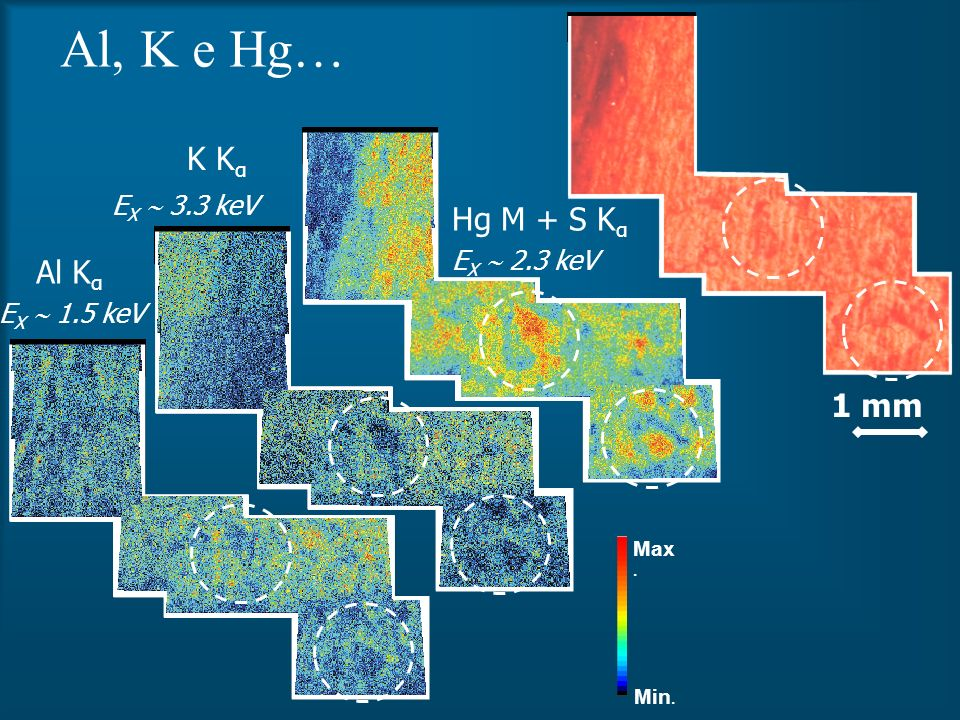 Al, K e Hg… 1 mm Min. Max. Hg M + S K α K K α Al K α E X 1.5 keV E X 3.3 keV E X 2.3 keV