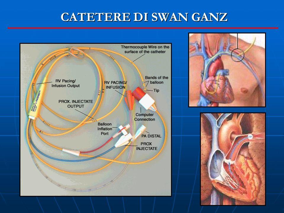 CATETERE DI SWAN GANZ