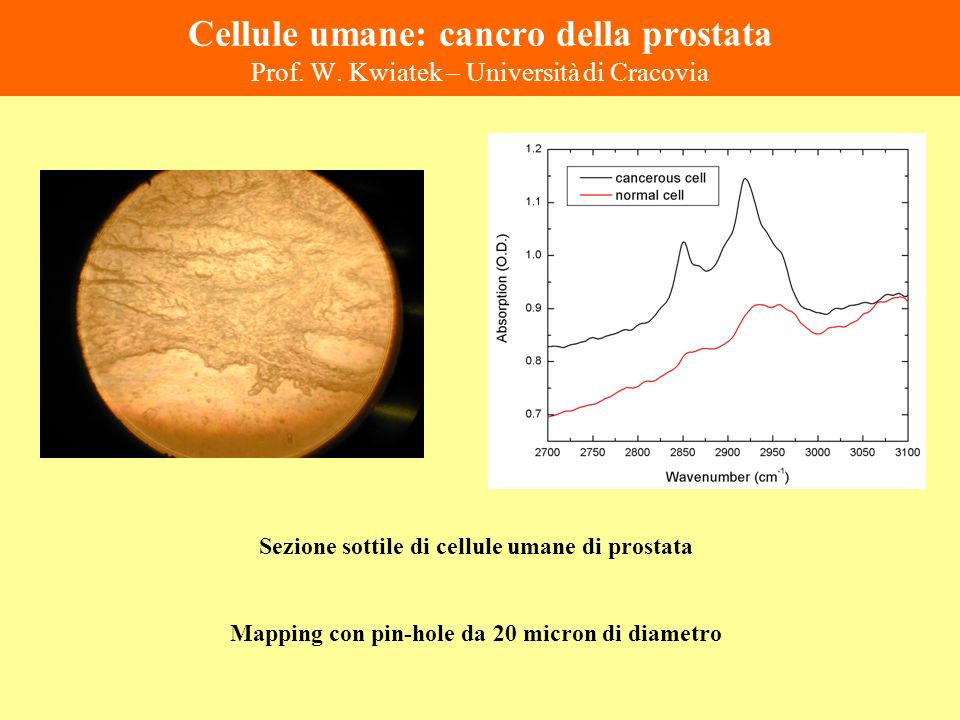 Cellule umane: cancro della prostata Prof. W. Kwiatek – Università di Cracovia Sezione sottile di cellule umane di prostata Mapping con pin-hole da 20
