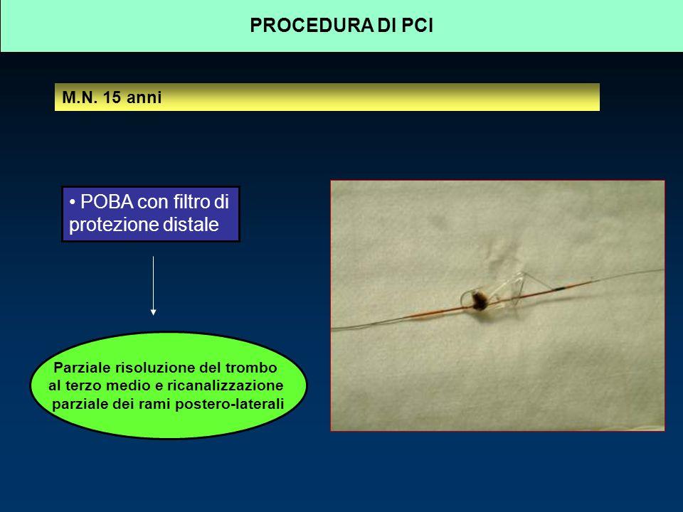 POBA con filtro di protezione distale Parziale risoluzione del trombo al terzo medio e ricanalizzazione parziale dei rami postero-laterali PROCEDURA DI PCI M.N.