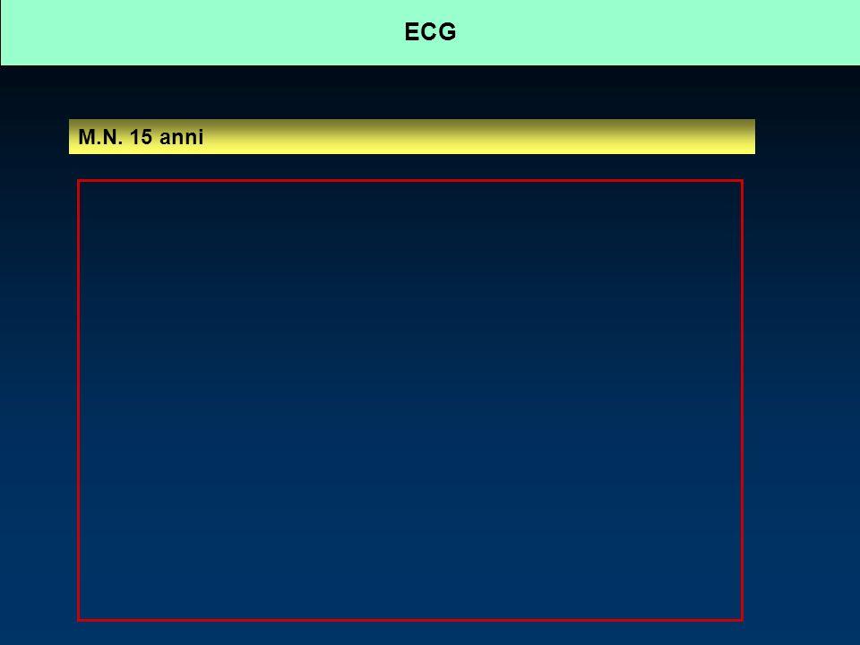 ECG: derivazioni posteriori M.N. 15 anni