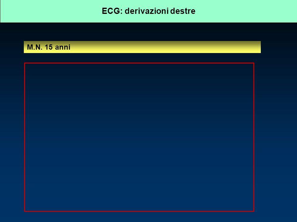 ECG: derivazioni destre M.N. 15 anni