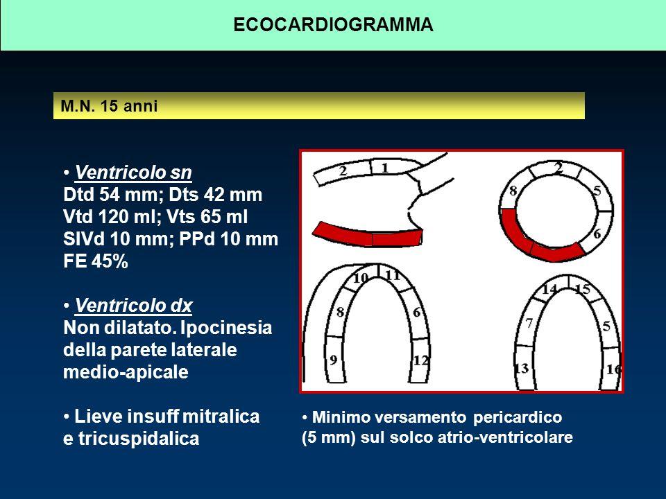 ECOCARDIOGRAMMA M.N.