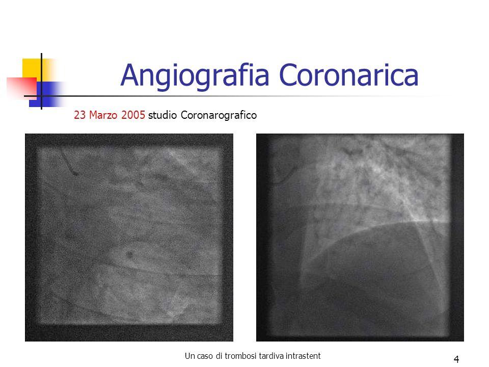 Un caso di trombosi tardiva intrastent 4 Angiografia Coronarica 23 Marzo 2005 studio Coronarografico