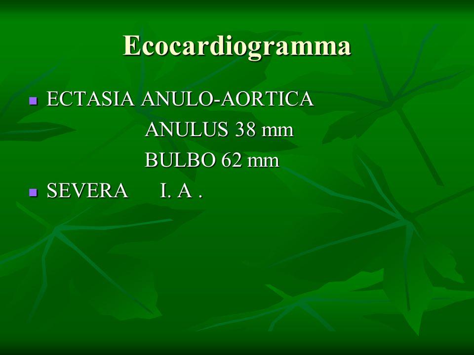 Ecocardiogramma ECTASIA ANULO-AORTICA ECTASIA ANULO-AORTICA ANULUS 38 mm ANULUS 38 mm BULBO 62 mm BULBO 62 mm SEVERA I. A. SEVERA I. A.