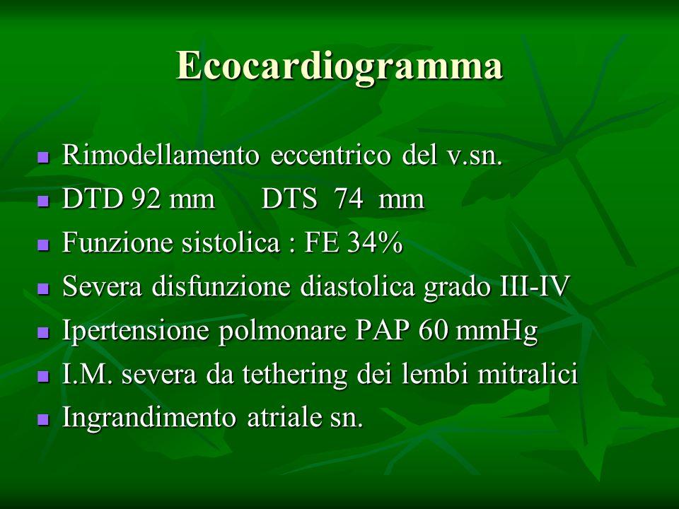 Ecocardiogramma Rimodellamento eccentrico del v.sn. Rimodellamento eccentrico del v.sn. DTD 92 mm DTS 74 mm DTD 92 mm DTS 74 mm Funzione sistolica : F