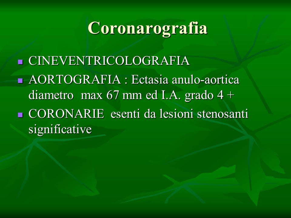 Coronarografia Coronarografia CINEVENTRICOLOGRAFIA CINEVENTRICOLOGRAFIA AORTOGRAFIA : Ectasia anulo-aortica diametro max 67 mm ed I.A. grado 4 + AORTO
