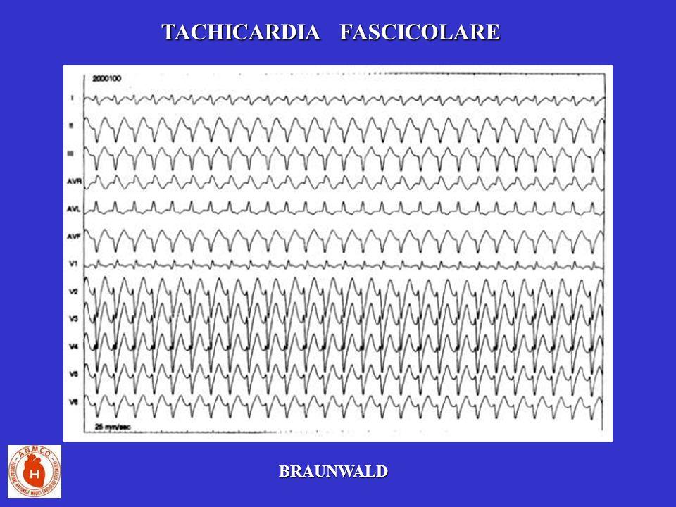 TACHICARDIA FASCICOLARE BRAUNWALD