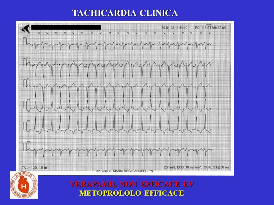 TACHICARDIA CLINICA VERAPAMIL NON EFFICACE EV METOPROLOLO EFFICACE