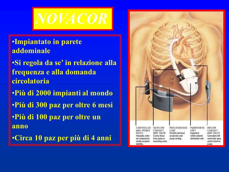 NOVACOR Impiantato in parete addominale Si regola da se in relazione alla frequenza e alla domanda circolatoria Più di 2000 impianti al mondo Più di 3
