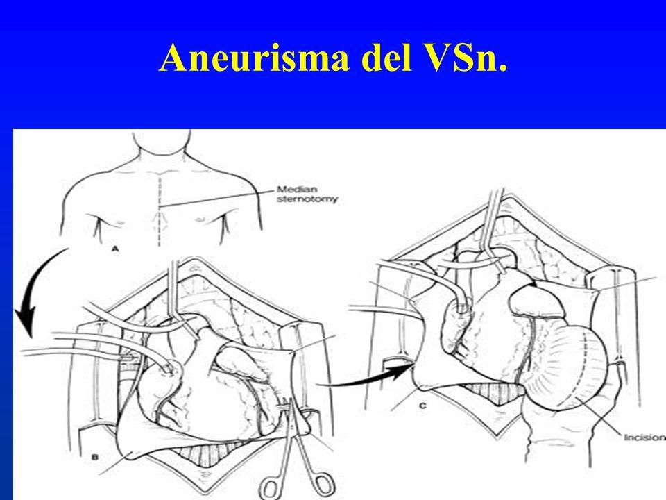 Aneurisma del VSn.