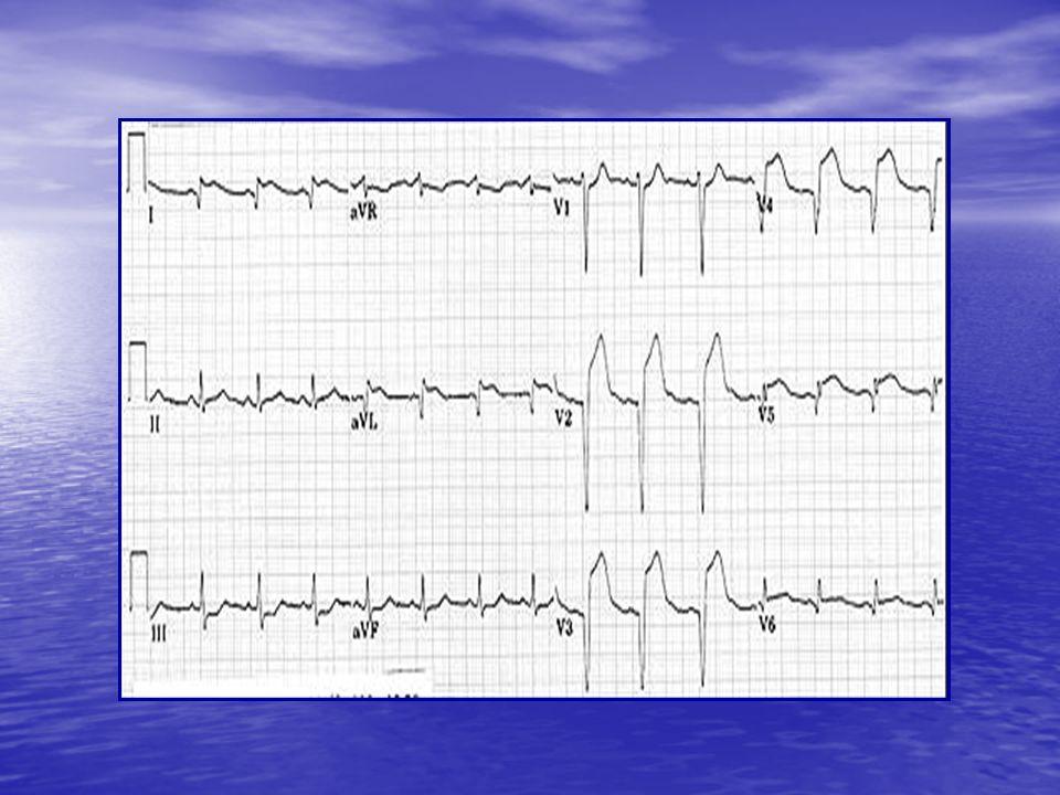 Caso clinico (1) Caso clinico (1) E.O.cardiaco: soffio sistolico apicale (1-2/6 L).