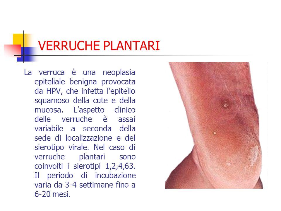 VERRUCHE PLANTARI La verruca è una neoplasia epiteliale benigna provocata da HPV, che infetta lepitelio squamoso della cute e della mucosa. Laspetto c