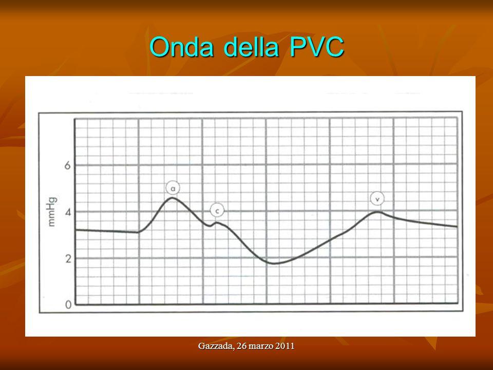 Gazzada, 26 marzo 2011 Alterazioni dellonda della PVC