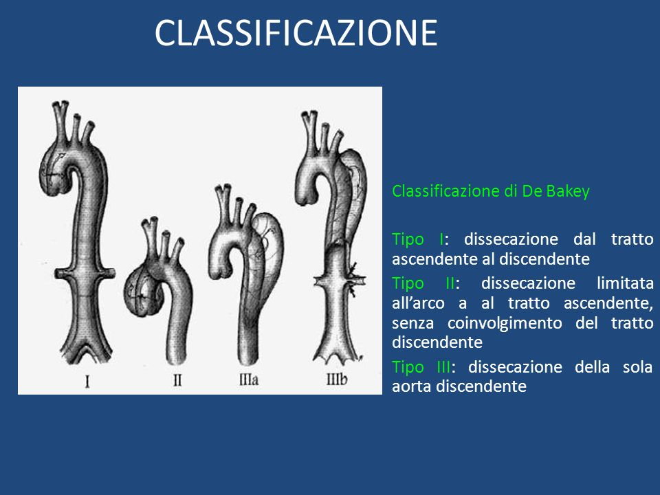 CLASSIFICAZIONE Classificazione di De Bakey Tipo I: dissecazione dal tratto ascendente al discendente Tipo II: dissecazione limitata allarco a al trat