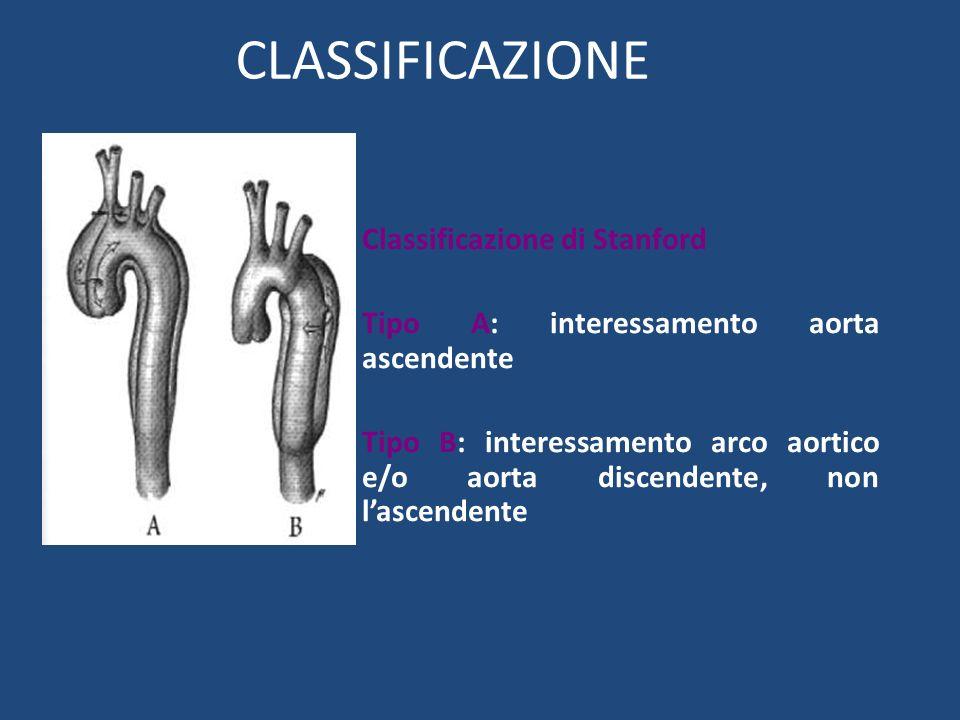 CLASSIFICAZIONE Classificazione di Stanford Tipo A: interessamento aorta ascendente Tipo B: interessamento arco aortico e/o aorta discendente, non las