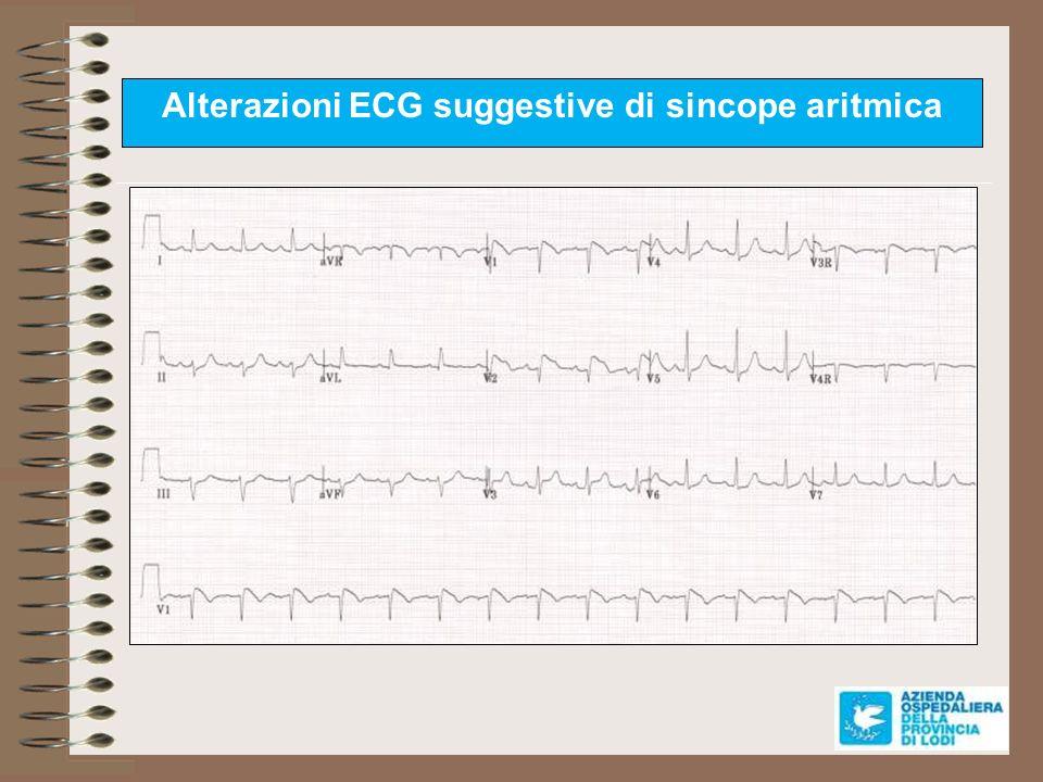 Alterazioni ECG suggestive di sincope aritmica