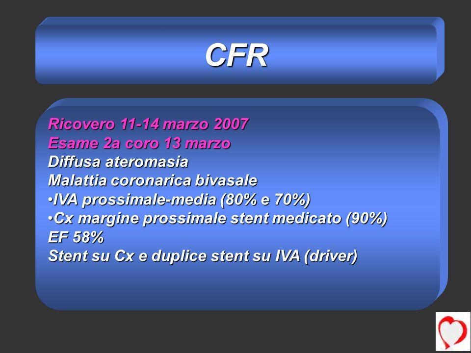 Ricovero 11-14 marzo 2007 Esame 2a coro 13 marzo Diffusa ateromasia Malattia coronarica bivasale IVA prossimale-media (80% e 70%)IVA prossimale-media (80% e 70%) Cx margine prossimale stent medicato (90%)Cx margine prossimale stent medicato (90%) EF 58% Stent su Cx e duplice stent su IVA (driver) CFR