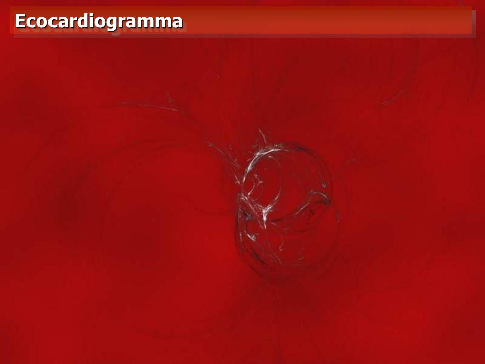 EcocardiogrammaEcocardiogramma