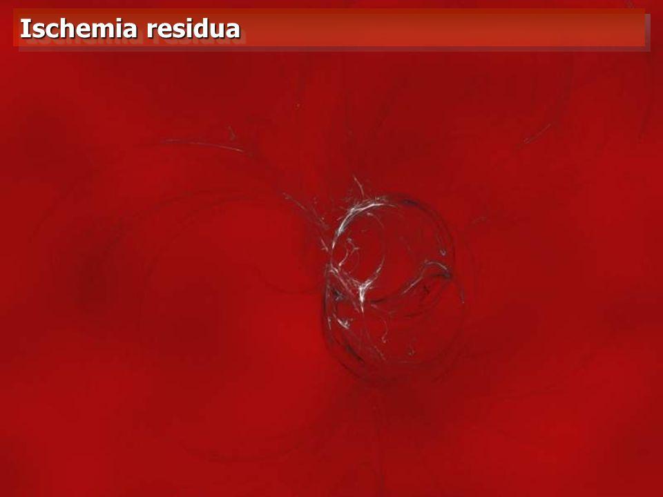 Ischemia residua