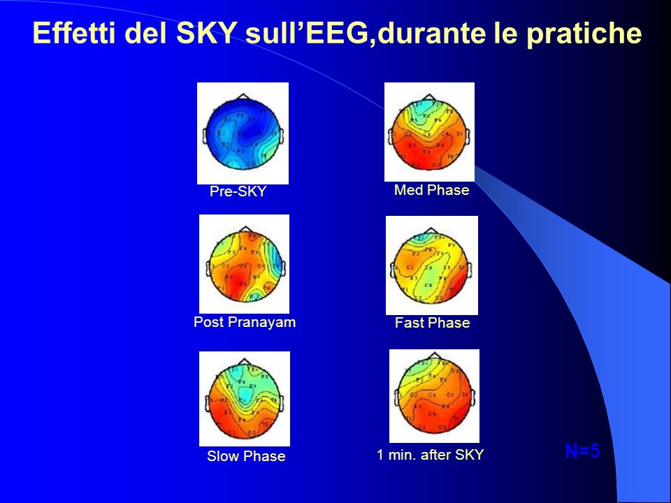 Effetti del SKY sullEEG,durante le pratiche Pre-SKY Med Phase Fast PhasePost Pranayam Slow Phase 1 min. after SKY N=5