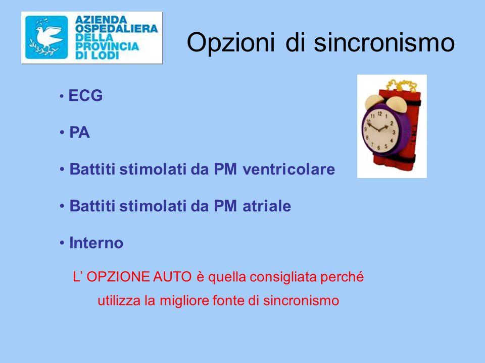 Opzioni di sincronismo ECG PA Battiti stimolati da PM ventricolare Battiti stimolati da PM atriale Interno L OPZIONE AUTO è quella consigliata perché utilizza la migliore fonte di sincronismo