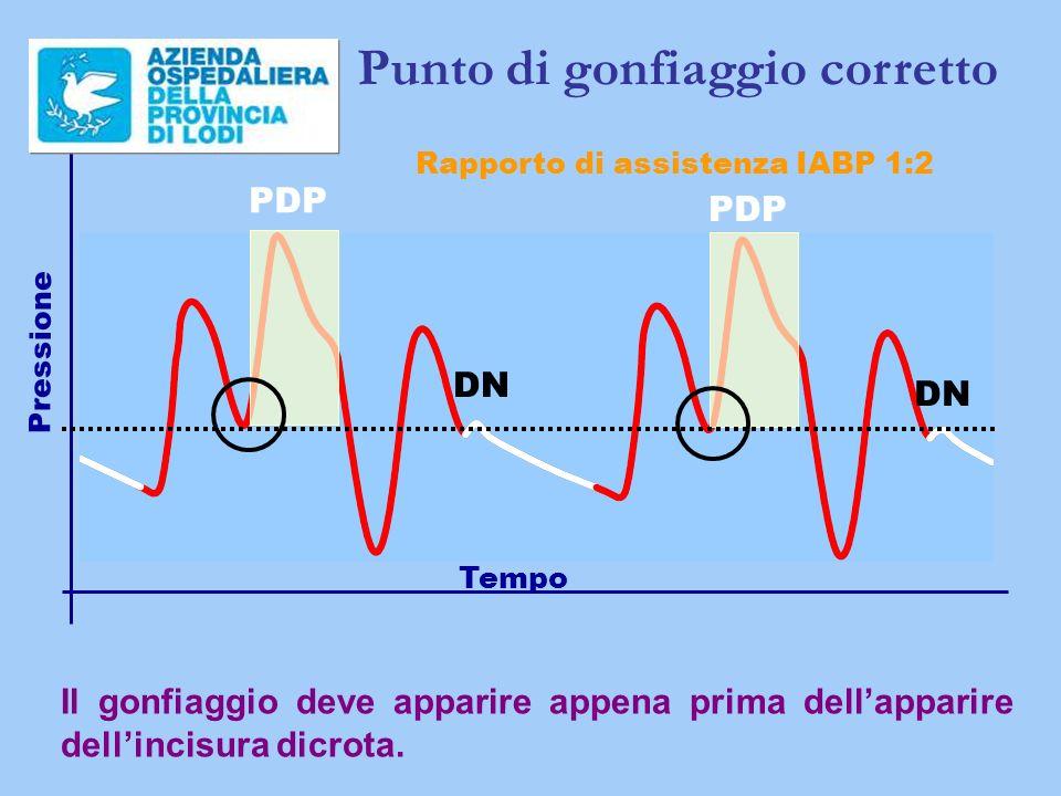 Tempo Pressione Rapporto di assistenza IABP 1:2 Punto di gonfiaggio corretto PDP DN PDP DN Il gonfiaggio deve apparire appena prima dellapparire dellincisura dicrota.
