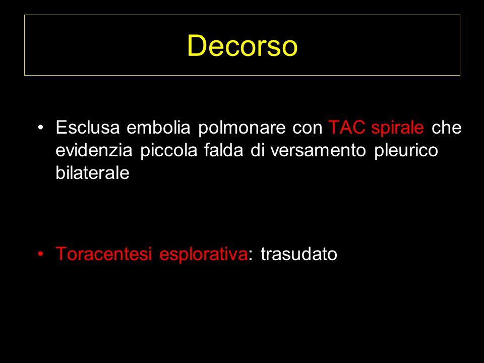 Decorso Esclusa embolia polmonare con TAC spirale che evidenzia piccola falda di versamento pleurico bilaterale Toracentesi esplorativa: trasudato