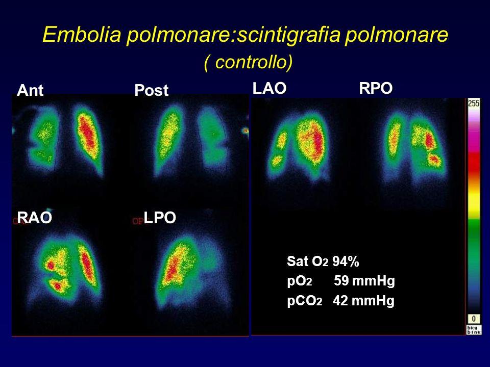 Embolia polmonare:scintigrafia polmonare ( controllo) LAO RPO Ant Post RAO LPO Sat O 2 94% pO 2 59 mmHg pCO 2 42 mmHg