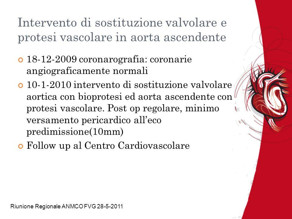 Riunione Regionale ANMCO FVG 28-5-2011 Intervento di sostituzione valvolare e protesi vascolare in aorta ascendente 18-12-2009 coronarografia: coronar