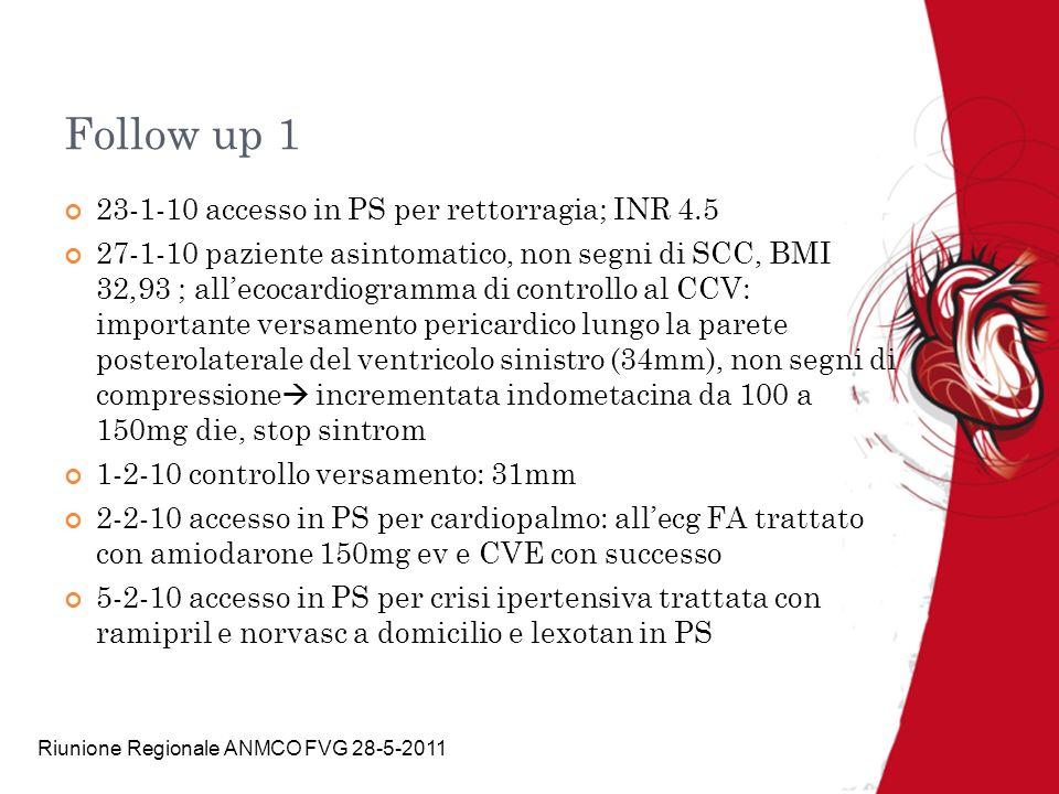 Riunione Regionale ANMCO FVG 28-5-2011 Follow up 1 23-1-10 accesso in PS per rettorragia; INR 4.5 27-1-10 paziente asintomatico, non segni di SCC, BMI