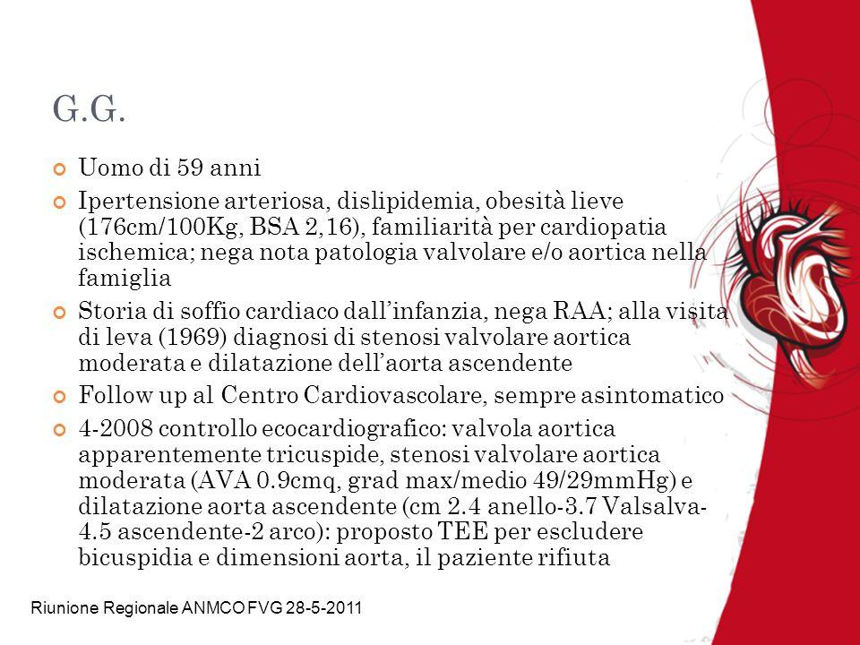 Riunione Regionale ANMCO FVG 28-5-2011 -Controllo 30-7-09 Asintomatico EO PA 140/90, soffio eiezione aortico 3/6, IIAo ridotto Ecocardiogramma: IVS, valvola calcifica, gradienti importanti, area ridotta in chiave con stenosi valvolare aortica severa (AVA 0,7cmq, vel.max CW 4,8m/sec,grad.max 92mmHg), aorta ai seni di Valsalva 4cm ed ascendente 5cm Aortic Ratio (diametro misurato/diametro atteso) al bulbo : 1,13; aorta ascendente: 1,28 Aortic Size Index (diametro massimo AA(cm)/BSA(m2): 2,31 Progressione della dilatazione aorta ascendente dal 2008 : 4cm 2009: 5cm 1cm
