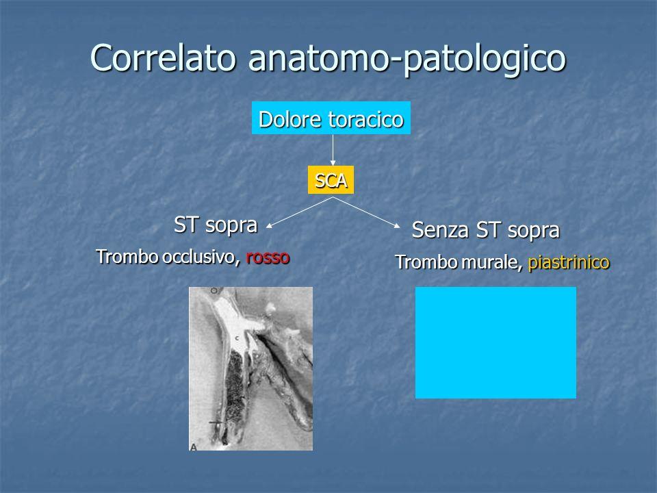 Correlato anatomo-patologico Senza ST sopra ST sopra Trombo murale, piastrinico Trombo occlusivo, rosso Dolore toracico SCA
