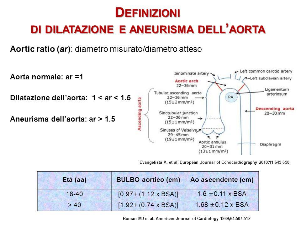 D EFINIZIONI DI DILATAZIONE E ANEURISMA DELL AORTA Aorta normale: ar =1 Dilatazione dellaorta: 1 < ar < 1.5 Aneurisma dellaorta: ar > 1.5 Aortic ratio