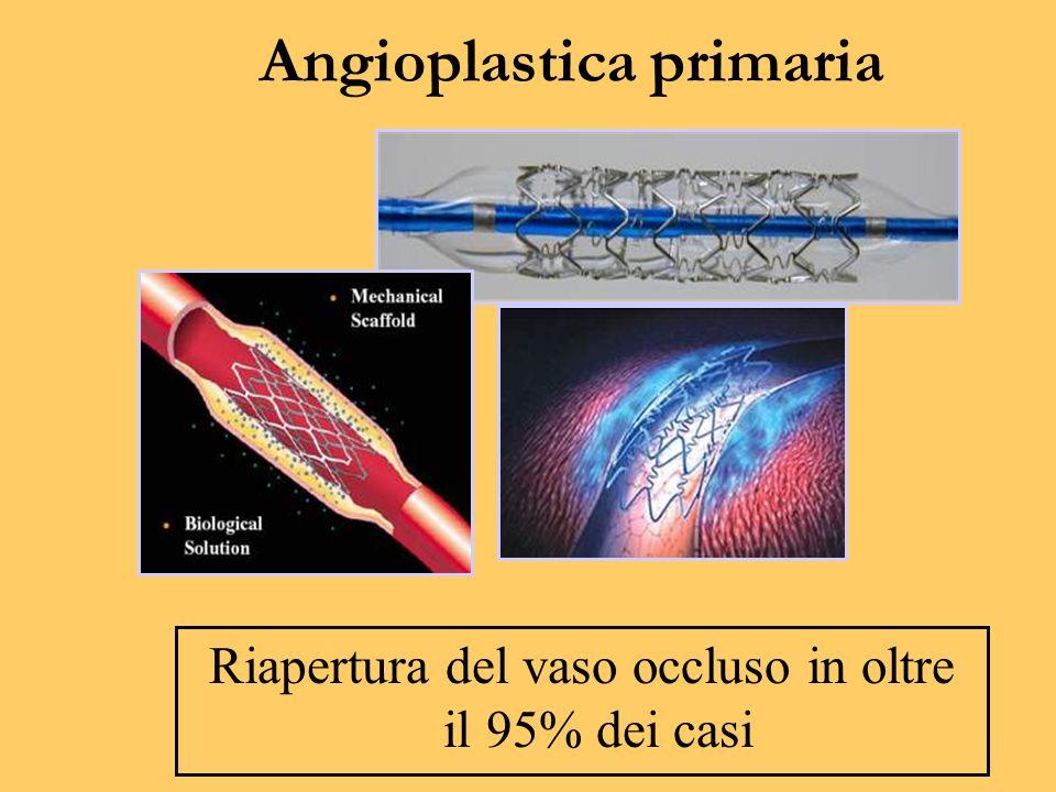 Angioplastica primaria Riapertura del vaso occluso in oltre il 95% dei casi