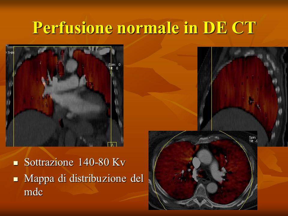 Perfusione normale in DE CT Sottrazione 140-80 Kv Sottrazione 140-80 Kv Mappa di distribuzione del mdc Mappa di distribuzione del mdc