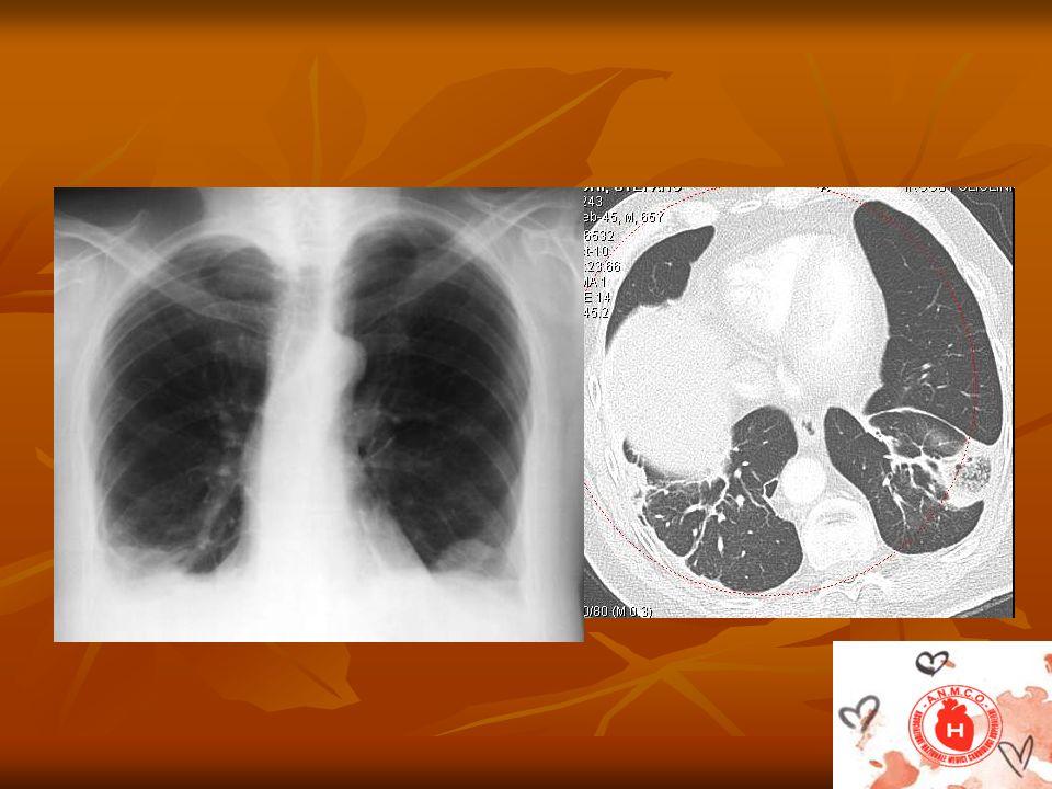 Radiology 256 (2010) 625-632 2003 soggetti esaminati per sospetta EPA 2003 soggetti esaminati per sospetta EPA 90,16% TC negativa 90,16% TC negativa 9,84 % TC positiva 9,84 % TC positiva Nei soggetti pos 97,46% uno o più fattori di rischio Nei soggetti pos 97,46% uno o più fattori di rischio Nei soggetti neg.