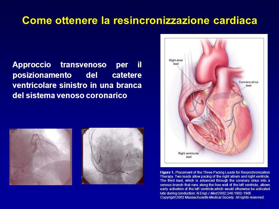 Come ottenere la resincronizzazione cardiaca Approccio transvenoso per il posizionamento del catetere ventricolare sinistro in una branca del sistema