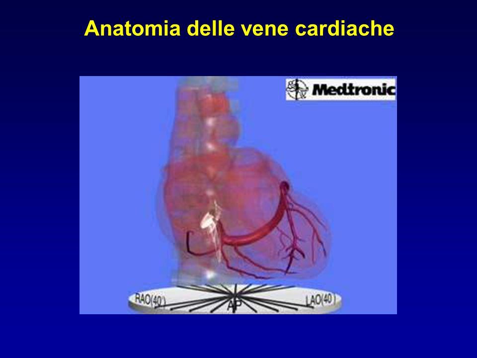 Anatomia delle vene cardiache